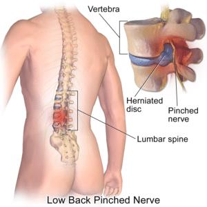 Bulging disc, low back pain